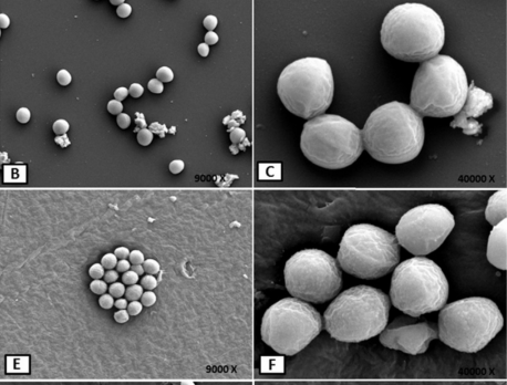 Adhesiveness of opportunistic Staphylococcus aureus to materials used in dental office: In vitro study